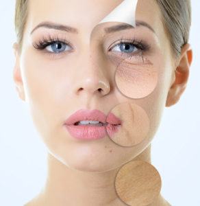 Derma Skin Needling