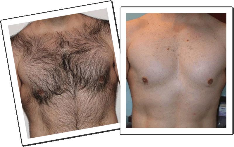 Laser Hair Removal Laser Lipo Global